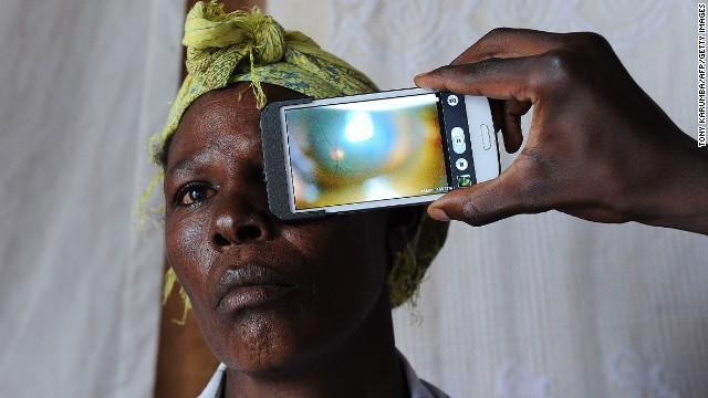 140113161708-mobile-africa-eye-exam-story-top