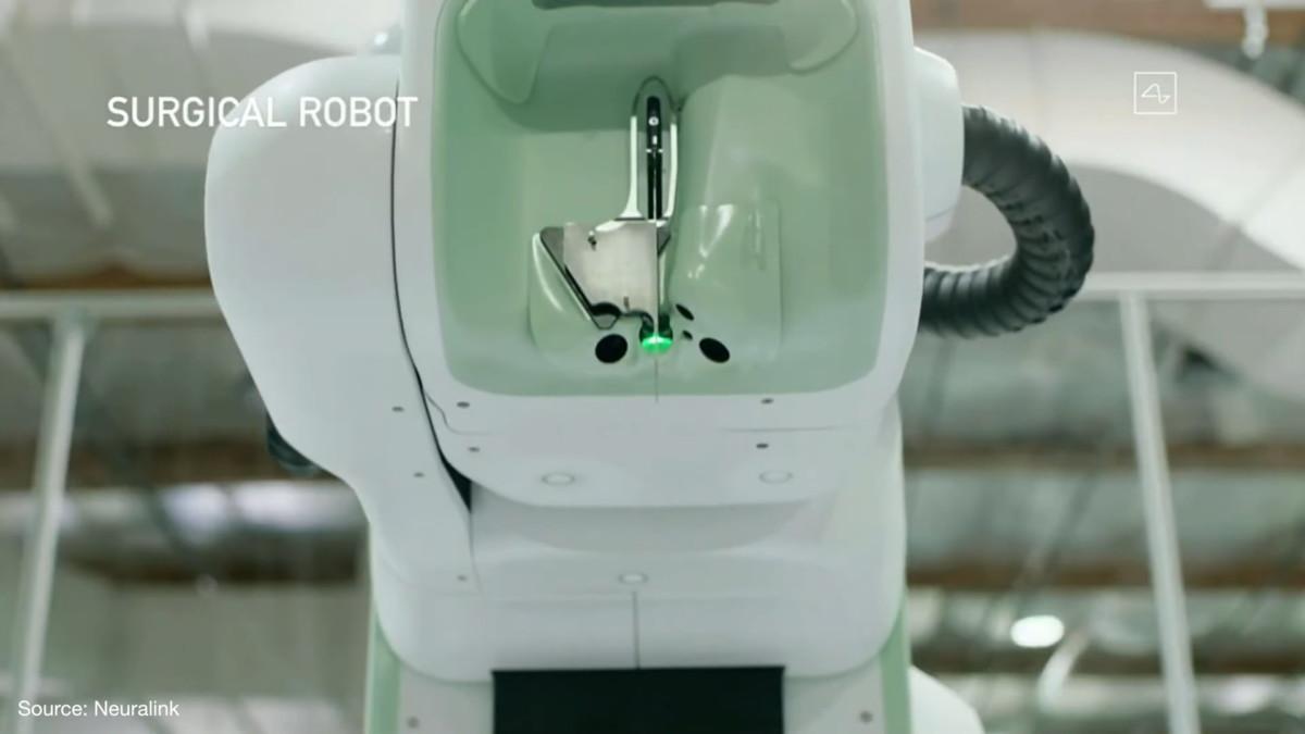 Le robot chargé de l'opération