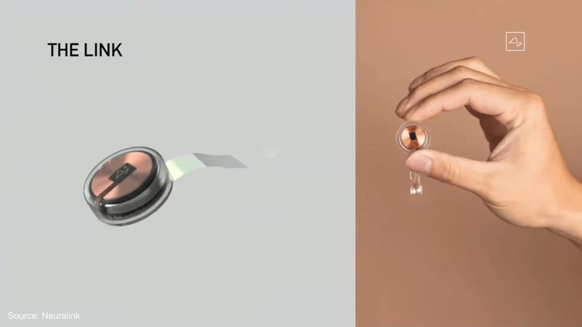 L'implant